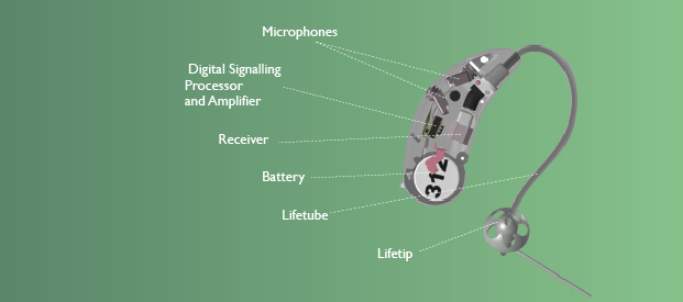 hearing-aid-cross-section.png